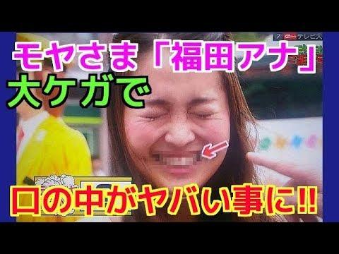 【観覧注意】「モヤさま」福田アナあごにひび、ボルト6本入れる手術する大ケガ!その原因とは!?
