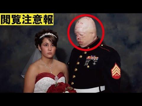 【閲覧注意】負傷した米兵の壮絶な人生!世界が震えた衝撃写真のその後…