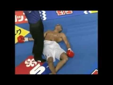 顎を砕かれ病院送り! 試合前に喧嘩を売り殴り掛かったファイターの強烈なKO負け キックボクシング