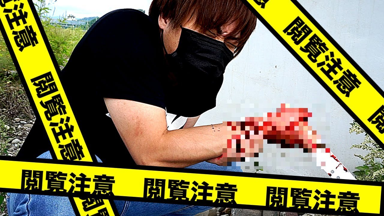 【アクシデント】撮影中に腕を切り流血してしまいました・・・