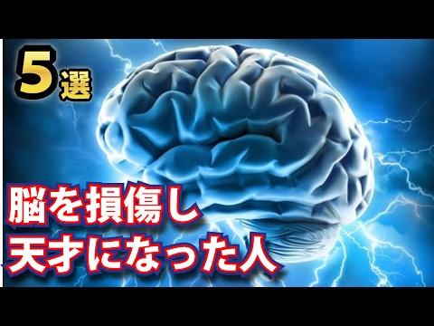 脳に損傷を受けたことで才能が開花した天才たち5選!プールの底に頭を打って気絶した男がある才能に目覚めた!!!