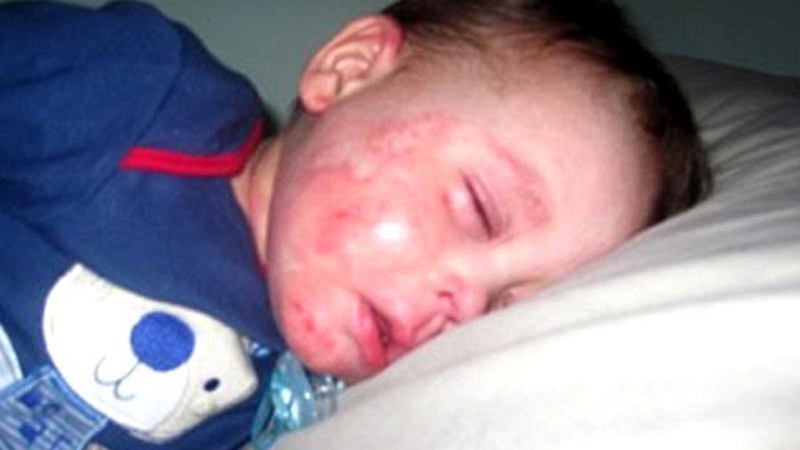 「ママお願い、僕を死なせて。」5歳の男児が自分の誕生日に言った言葉に母号泣
