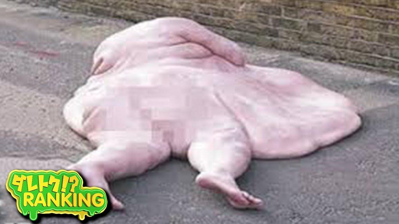 【衝撃】世界のヤバいくらい太りすぎた人間(ヘビー級) 10選