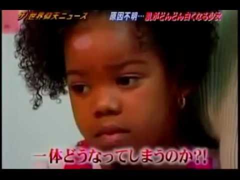 「肌が白くなった黒人少女」ザ!世界仰天ニュース #