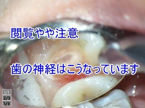 閲覧やや注意。虫歯除去の神経がでる