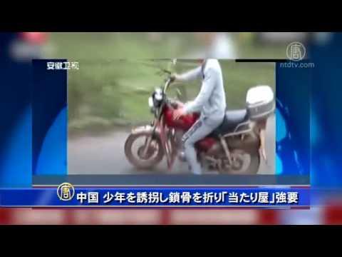 中国 少年を誘拐し鎖骨を折り「当たり屋」強要 20161009