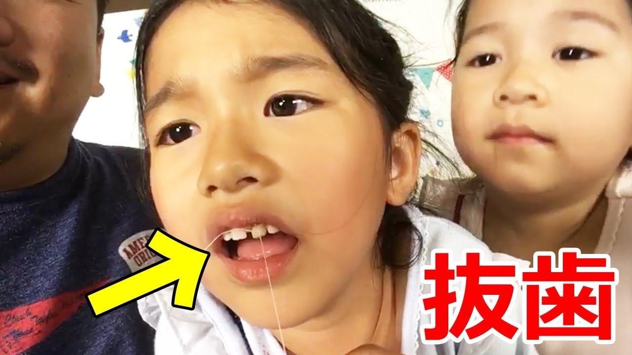 抜歯ライブ!!まーちゃんのグラグラ前歯を抜きます!応援してね!