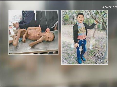 【禁聞】太った男の子が骨と皮の死体に 施設で虐待か(閲覧注意) 20150506
