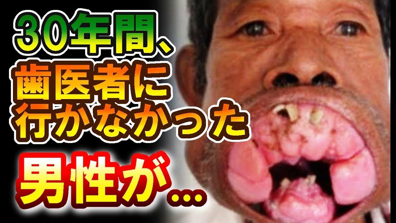【閲覧注意】30年間一度も歯医者に行かなかった男性を襲った悲劇!衝撃的すぎるその姿に驚きを隠せない(世界不思議DX