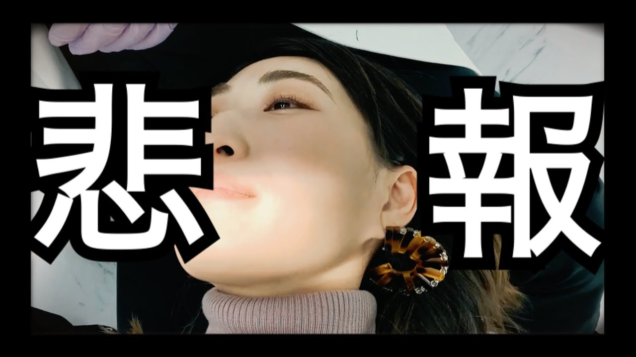#52 最悪の展開!再手術決定!(涙)【インビザライン】【歯列矯正】