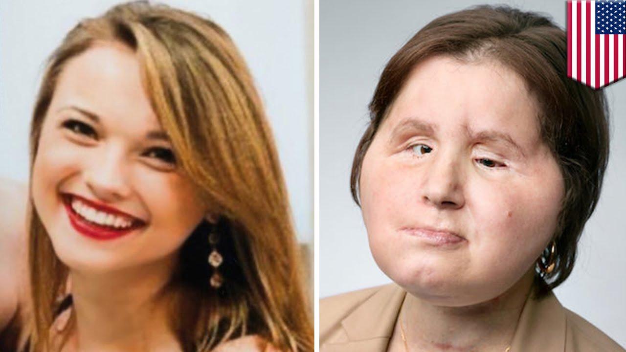 顔面損傷の21歳女性 米で最も若い顔面移植患者に – トモニュース