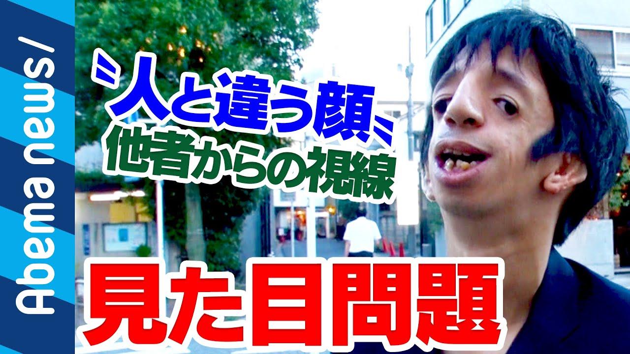 """【トリーチャーコリンズ症候群】""""見た目問題""""石田祐貴さんが視線を浴びながらも街を歩く理由 #アベプラ《アベマTVで放送中》"""